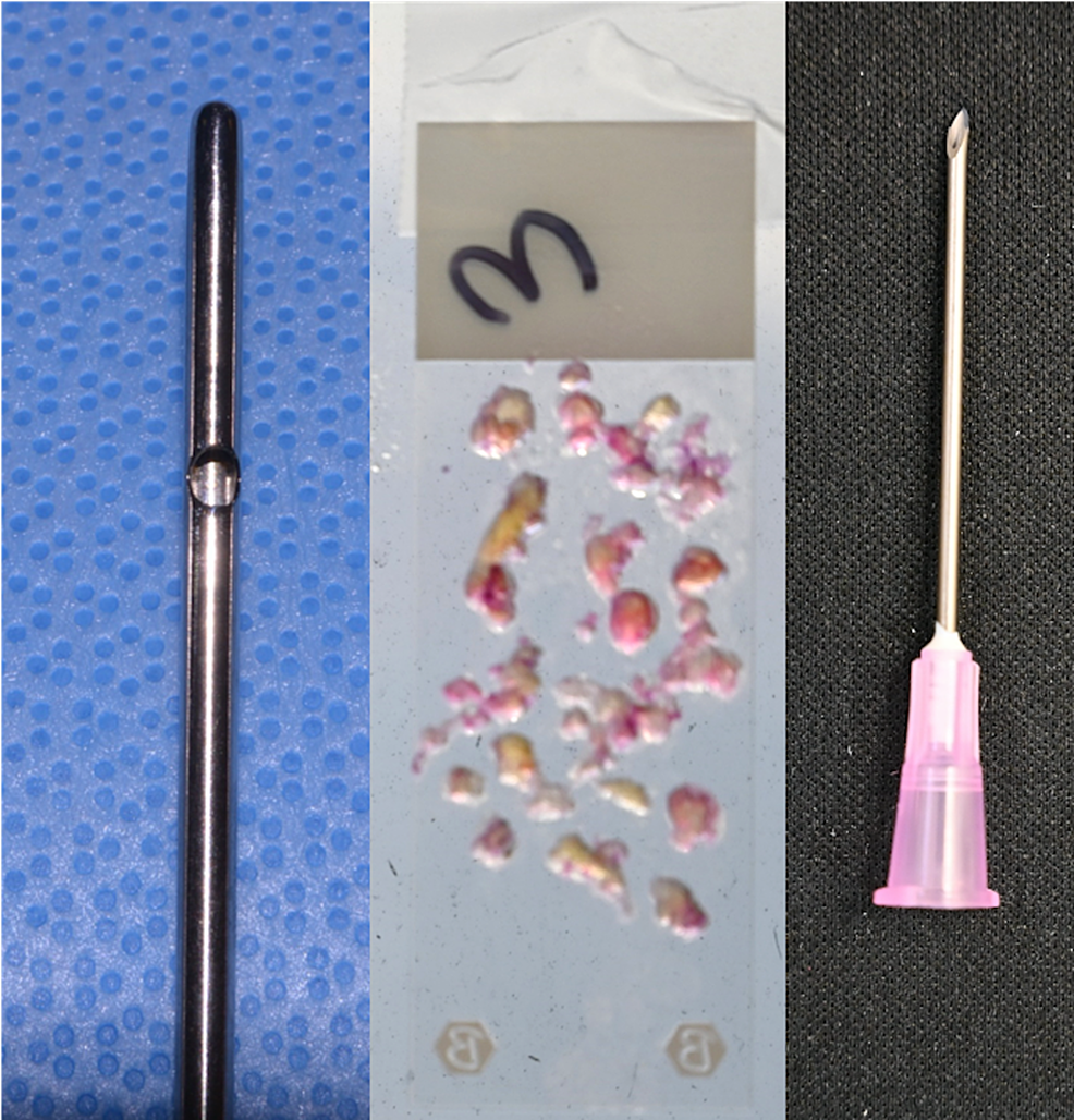 Fat-harvested-with-a-3-mm-cannula-produced-particles-up-to-3-mm-in-size,-which-were-successfully-injected-without-obstruction-through-a-16-gauge-needle-with-a-nominal-internal-diameter-of-1.19-mm.