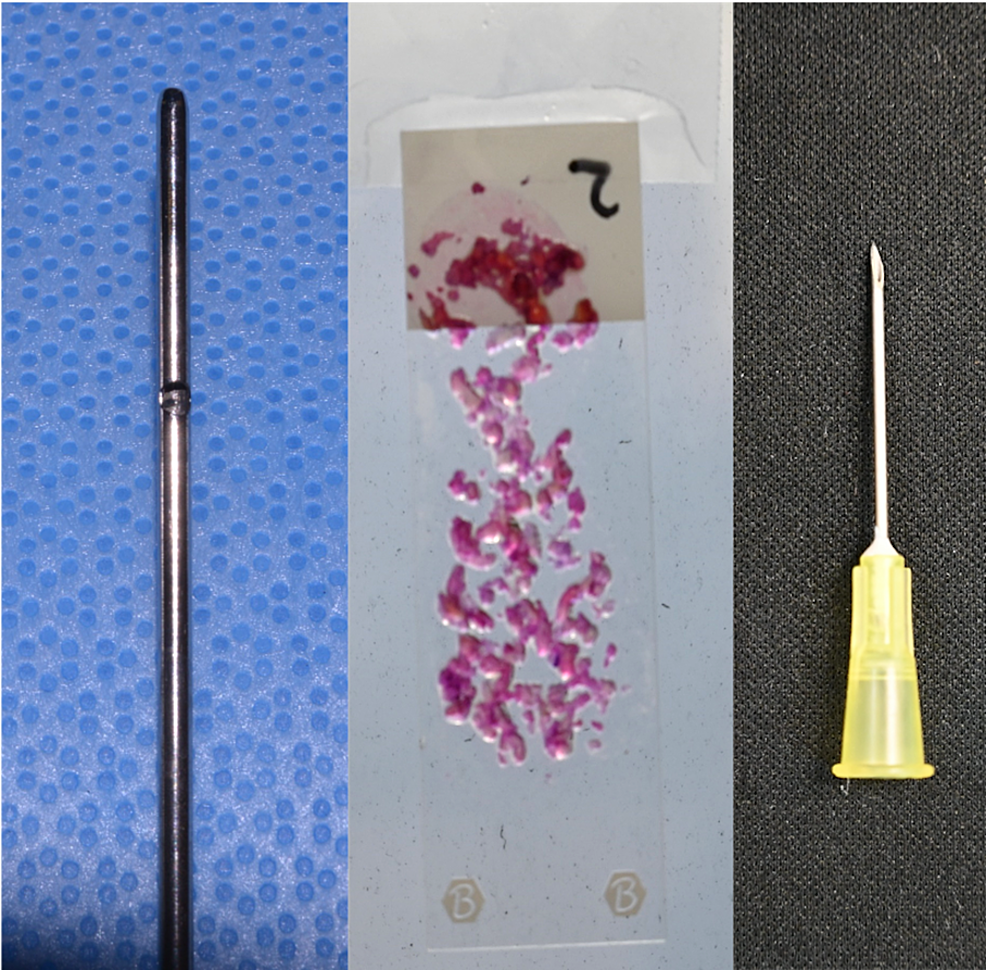 Fat-harvested-with-a-2-mm-cannula-produced-particles-up-to-2-mm-in-size,-which-were-successfully-injected-without-obstruction-through-an-18-gauge-needle-with-a-nominal-internal-diameter-of-0.84-mm.