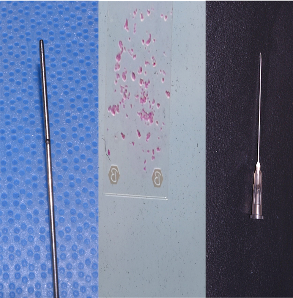 Fat-harvested-with-a-1-mm-cannula-produced-particles-up-to-1-mm-in-size,-which-were-successfully-injected-without-obstruction-through-a-20-gauge-needle-with-a-nominal-internal-diameter-of-0.60-mm.