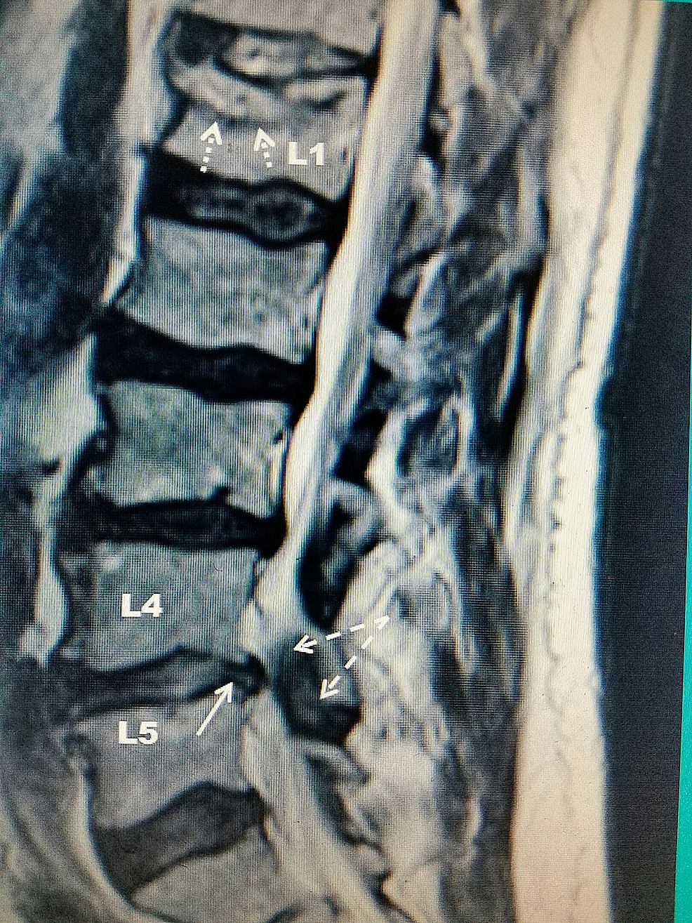 T2-weighted-sagittal-MRI-demonstrating-a-L1-vertebral-compression-fracture-in-addition-to-L4/L5-central-spinal-stenosis