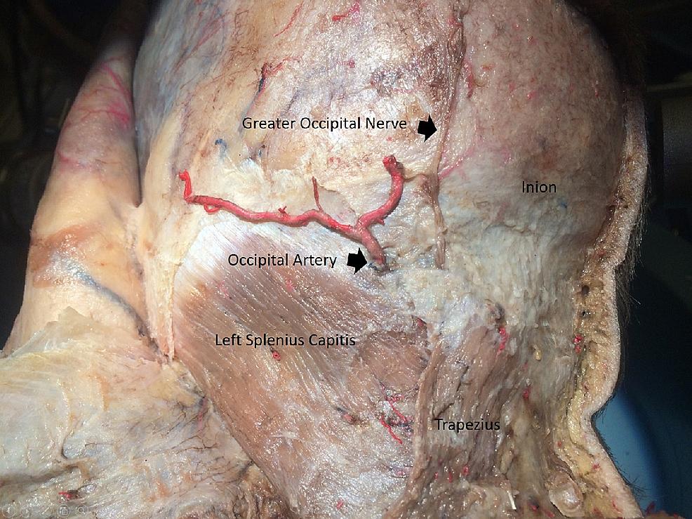 Trapezius-split-open-to-expose-splenius-capitis