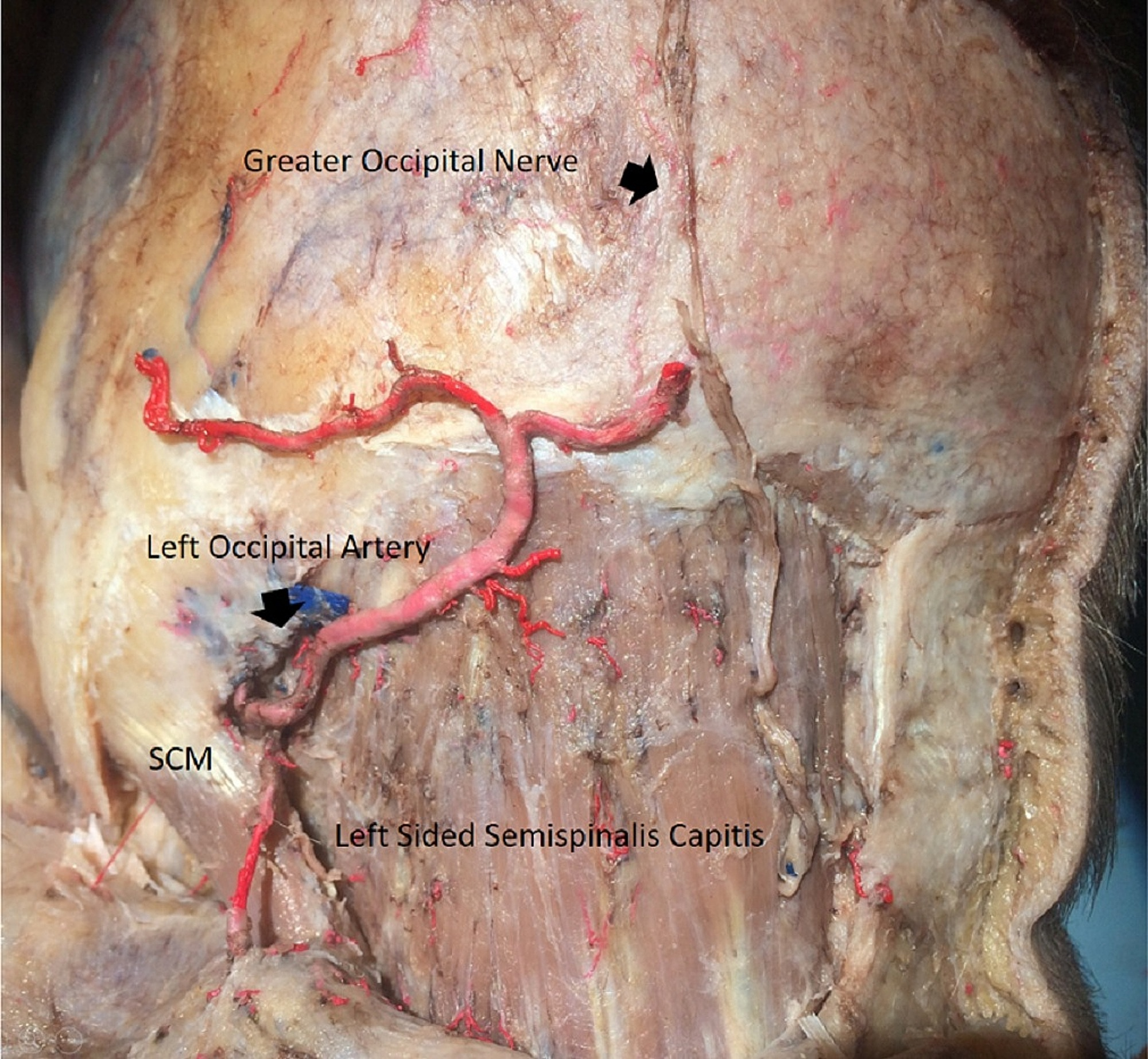Cureus | C2 and Greater Occipital Nerve: The Anatomic and Functional ...