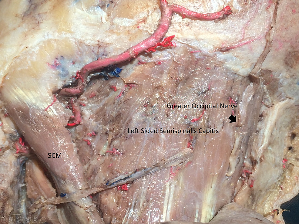 The-GON-exiting-semispinalis-capitis