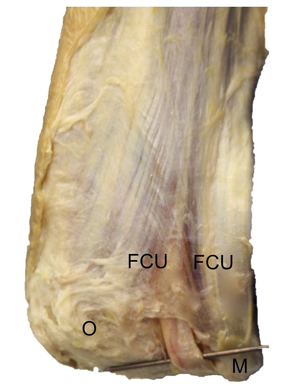 Cadaveric-dissection-of-the-right-posterior-elbow
