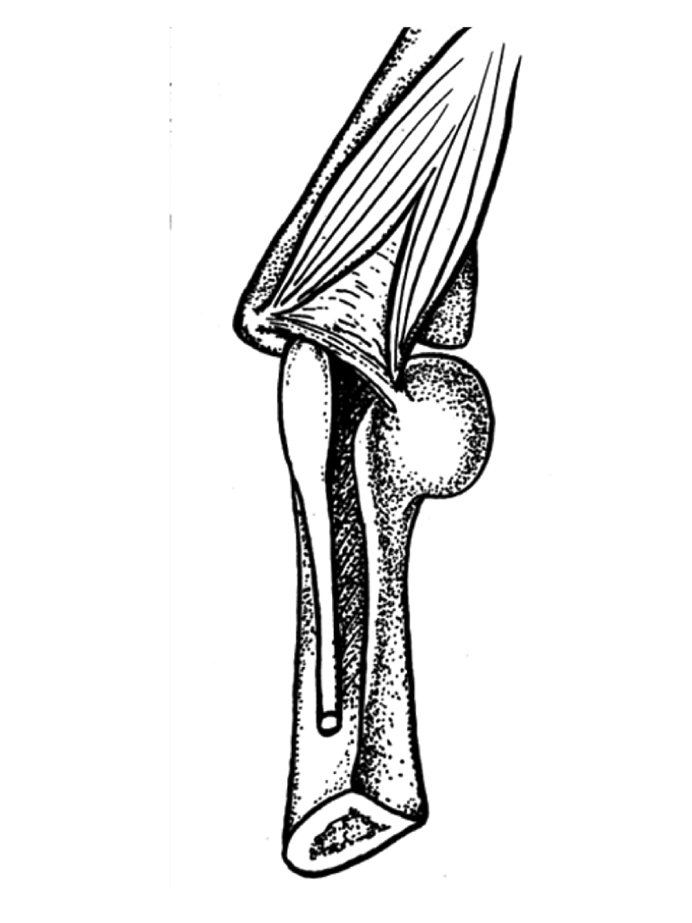 Drawing-of-Osborne's-ligament