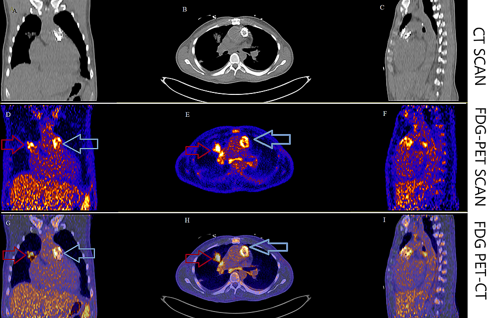 FDG-PET/CT-scan-of-the-chest-showing-increased-18F-uptake-in-the-region-of-the-Melody-valve-indicating-PVE-(blue-arrows-in-panels-D,-E,-G,-H)-and-pulmonary-septic-embolus-(red-arrows-in-panels-D,-E,-G,-H).-