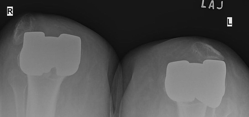 Skyline-x-ray-view-of-both-knees-showing-the-bilateral-dislocation-of-the-patellas.
