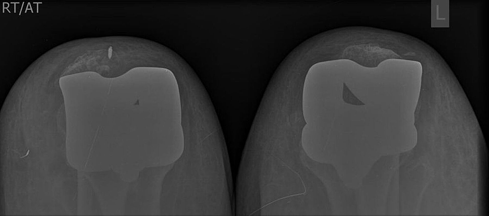Postoperative-follow-up-x-ray-with-skyline-view-both-knees-showing-normal-position-of-the-patellas.