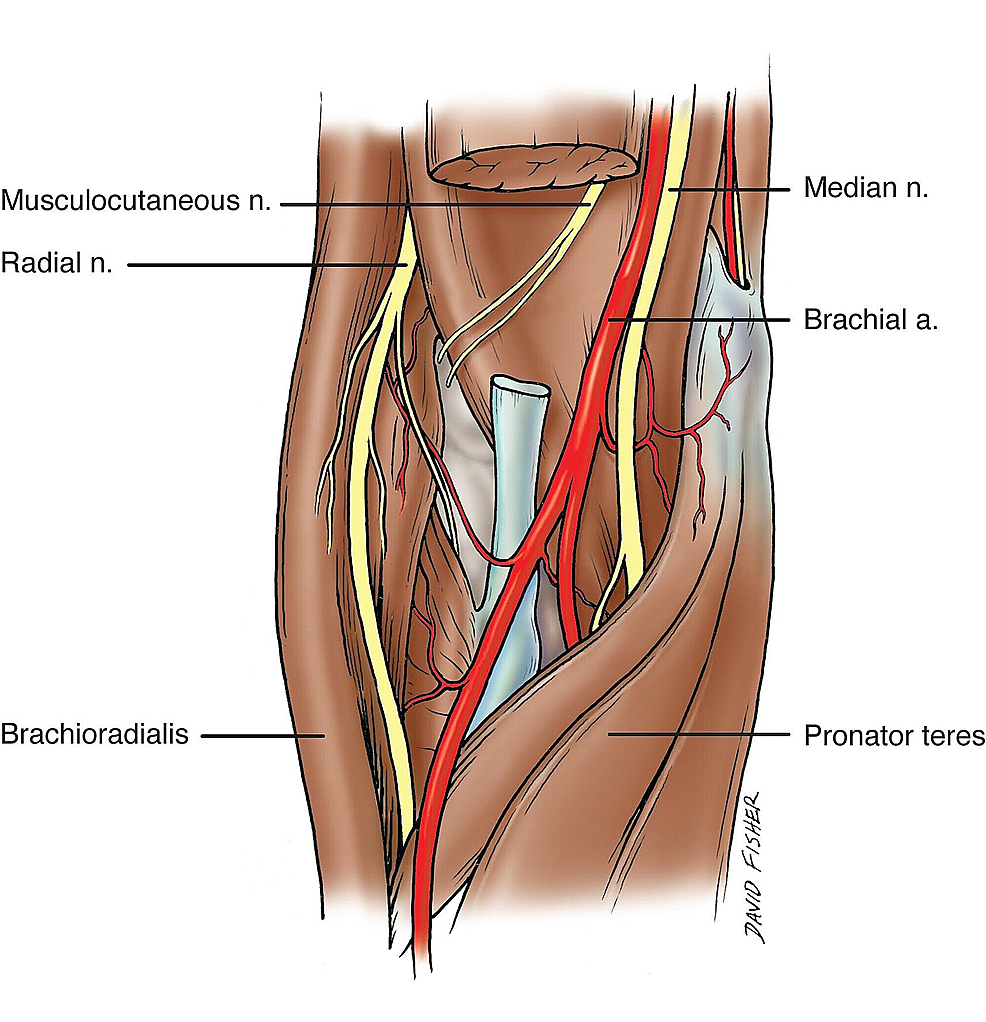Cureus | Relationship of the Median and Radial Nerves at the Elbow ...