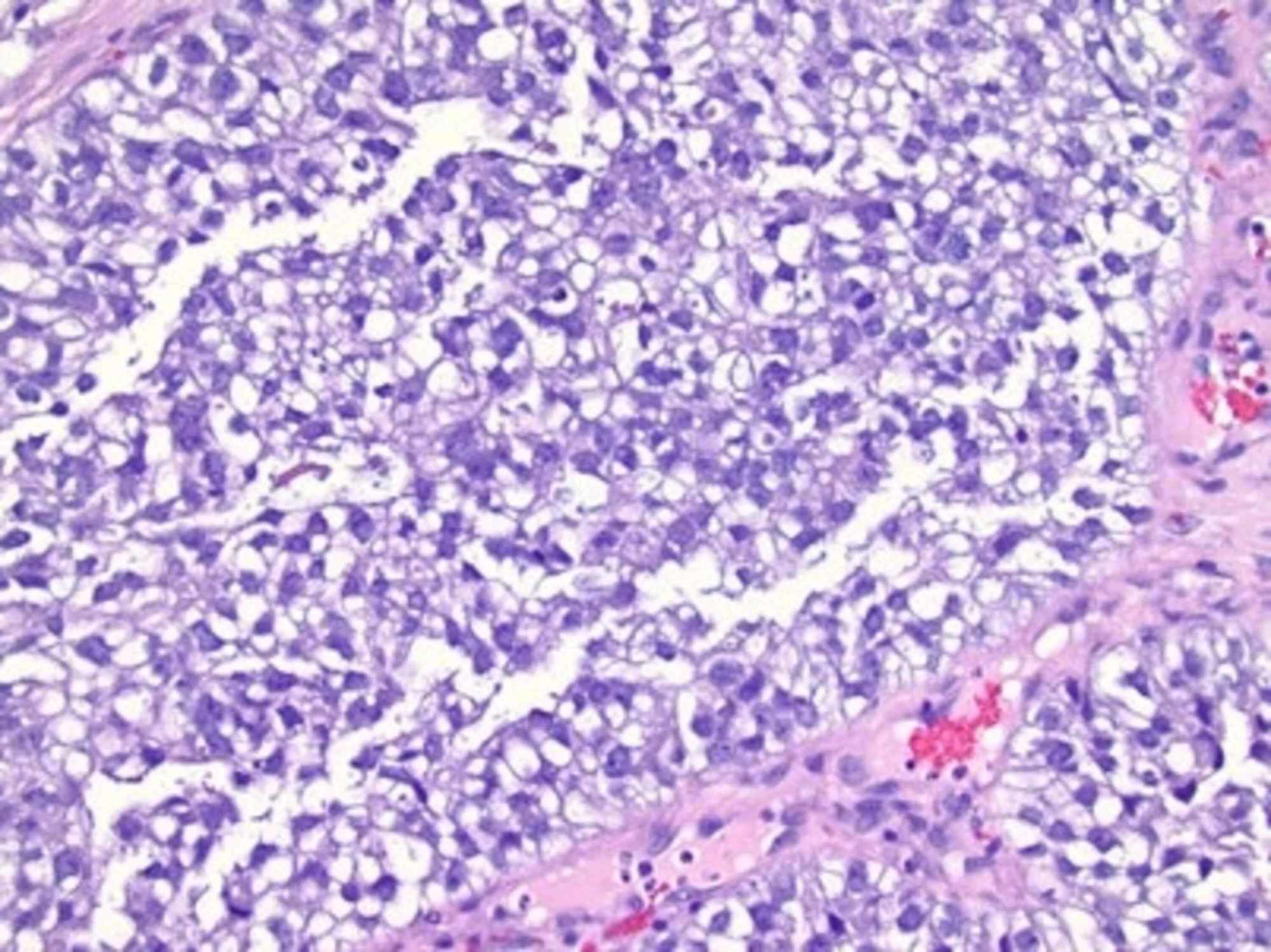 Cureus A Rare Case Of Clear Cell Adenocarcinoma Of The Cervix With No Intrauterine Diethylstilbestrol Exposure