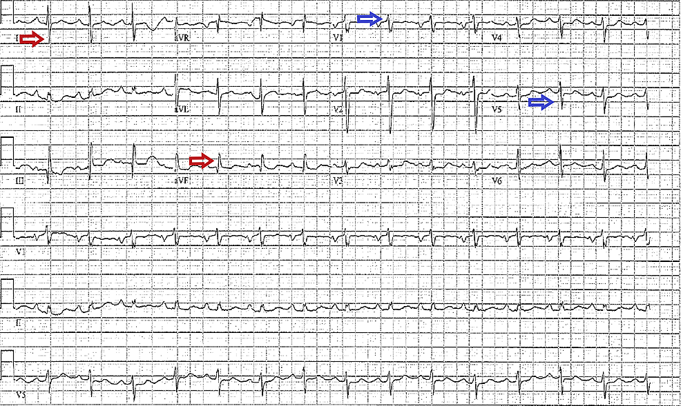 Electrocardiogram-of-a-patient-with-pulmonary-hypertension