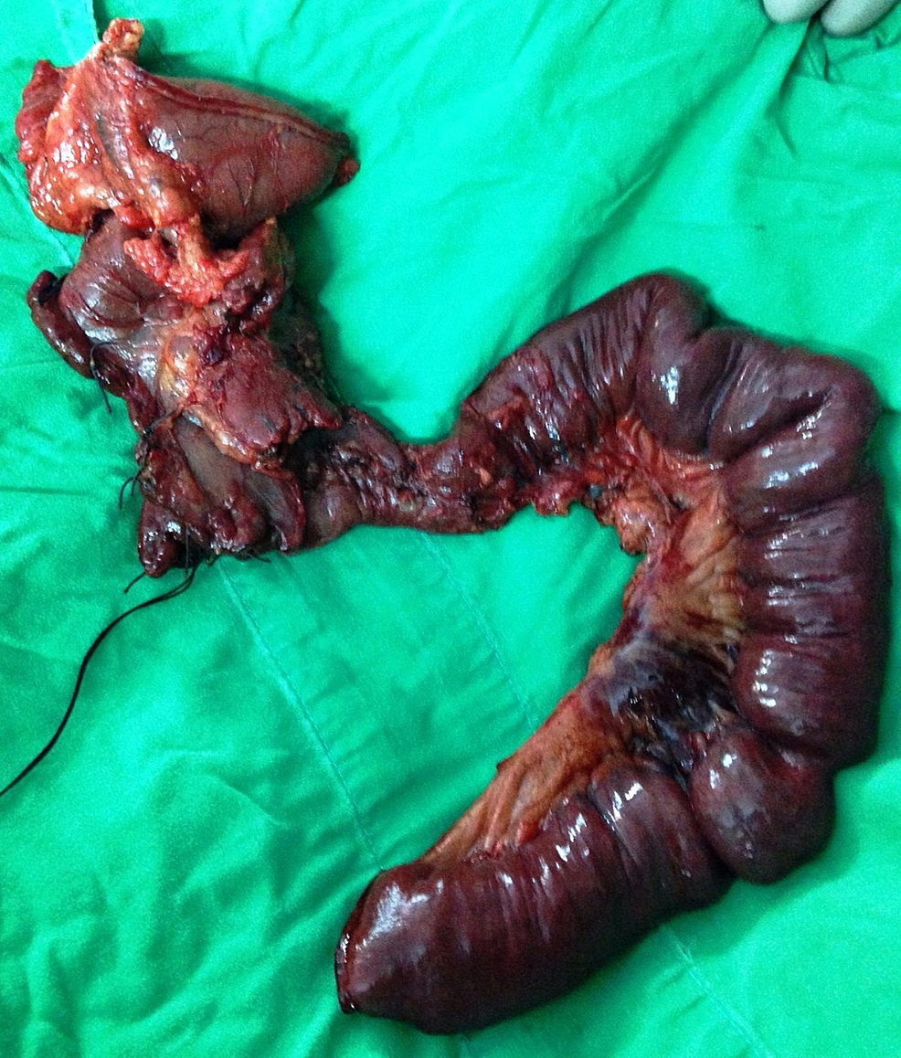 Whipple's-pancreatoduodenectomy-specimen-showing-large-non-reconstructable-duodenal-injury