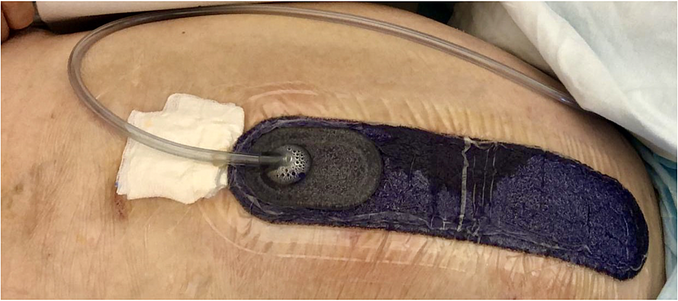 PrevenaTM-Peel-&-PlaceTM-Dressing,-KCI.-The-photo-shows-the-Prevena-dressing-at-the-time-of-removal.-The-white-gauze-is-positioned-to-show-the-transparency-of-the-drain-tube.-(Source:-photo-from-personal-archive)