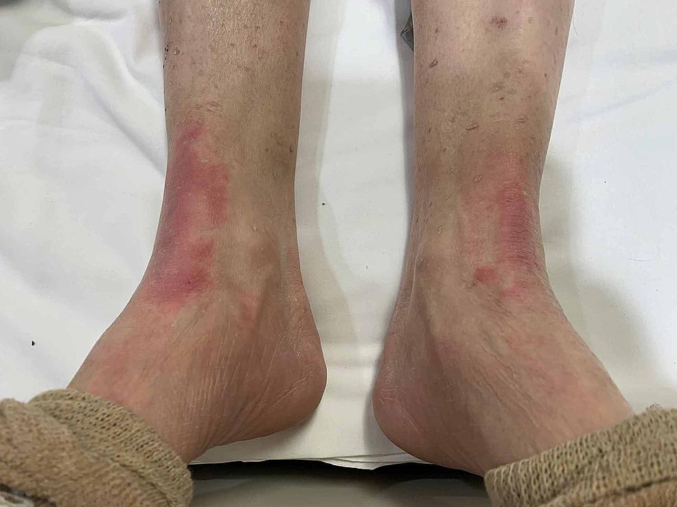 Bilateral-flexural-exanthema-of-feet