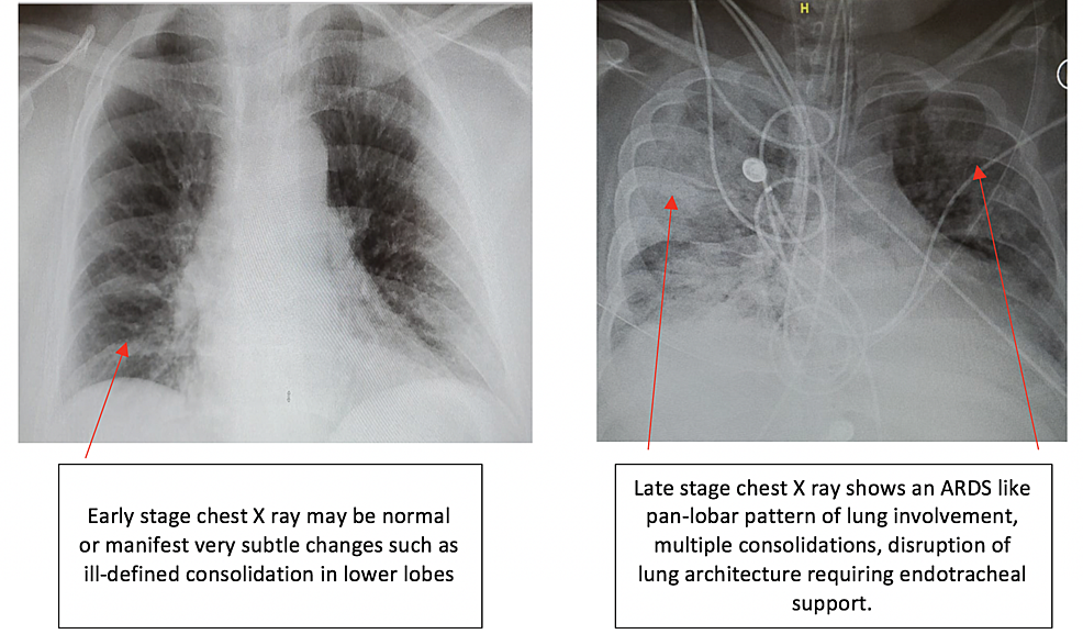 Cureus Radiological Findings In Patients With Covid 19
