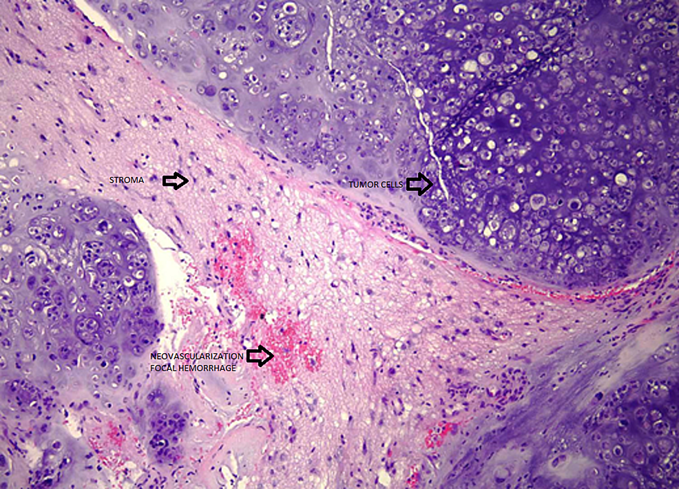 Low-power-view-of-chondrosarcoma-with-nests-of-tumor-cells-separated-by-bands-of-abundant-myxoid-stroma.-Note-neovascularization-and-focal-hemorrhage-(hematoxylin-eosin-stain,-original-magnification-x100).