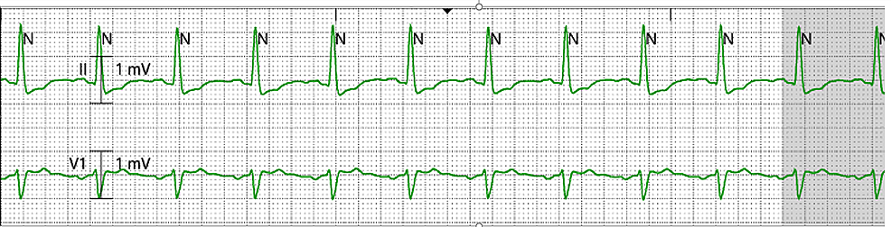 Telemetry-showing-return-to-normal-sinus-rhythm-after-ultrasound-guided-left-stellate-ganglion-block
