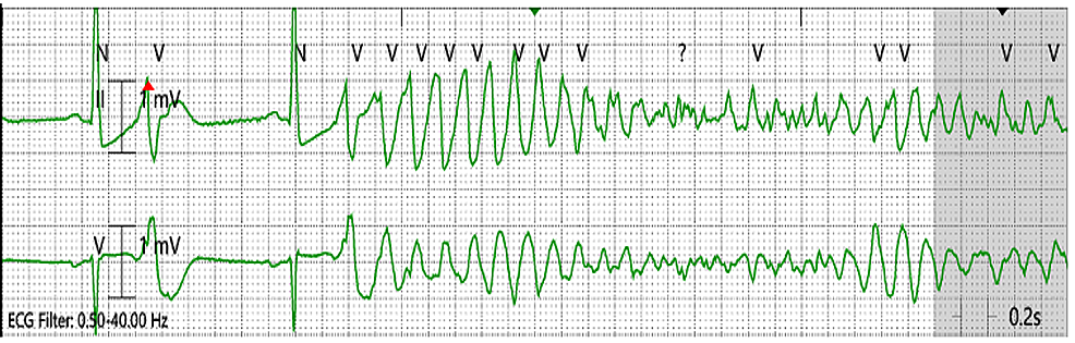 Telemetry-showing-ventricular-fibrillation-(VF)-on-the-first-day-of-admission