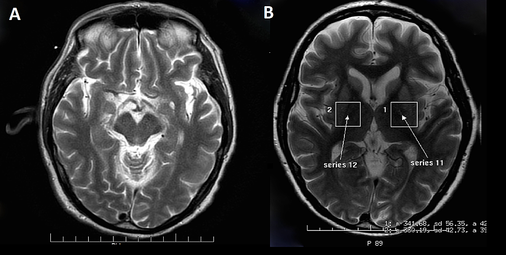 Diffusion-weighted-imaging-(DWI)-MRI