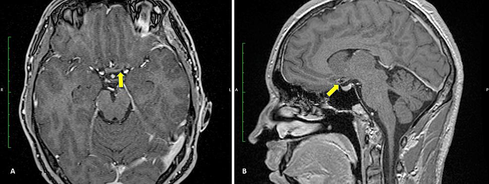 Postoperative-(A)-axial-and-(B)-sagittal-MRI.