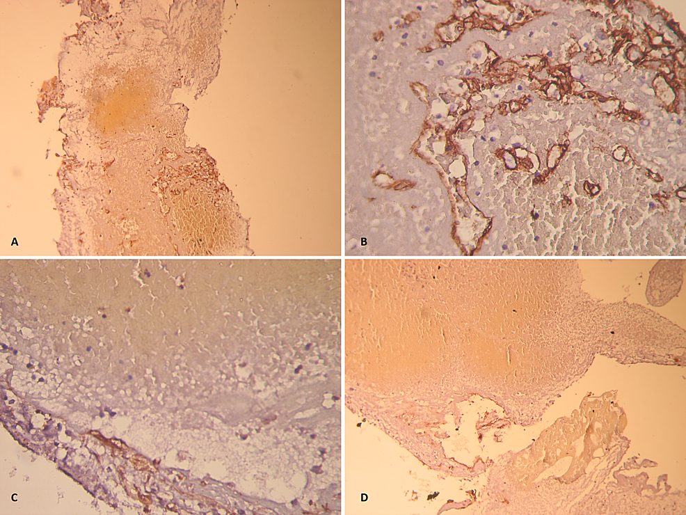 Microscopic-structure-of-the-resected-cavernous-malformation,-showing-heterochromous-thromboses.