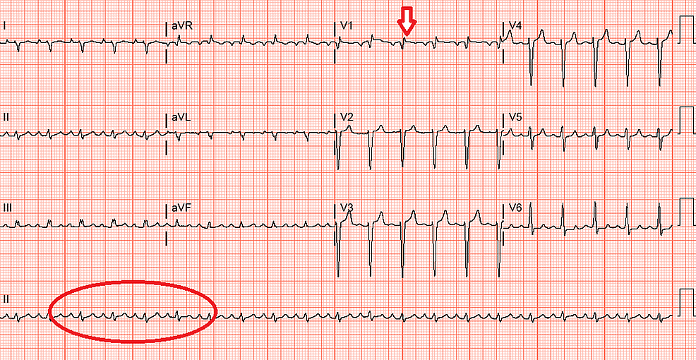 ECG:-atrial-flutter-(Red-circle)-with-right-axis-deviation,-incomplete-right-bundle-branch-block,-and-ST-elevation-(red-arrow)-indicative-of-septal-ischemia