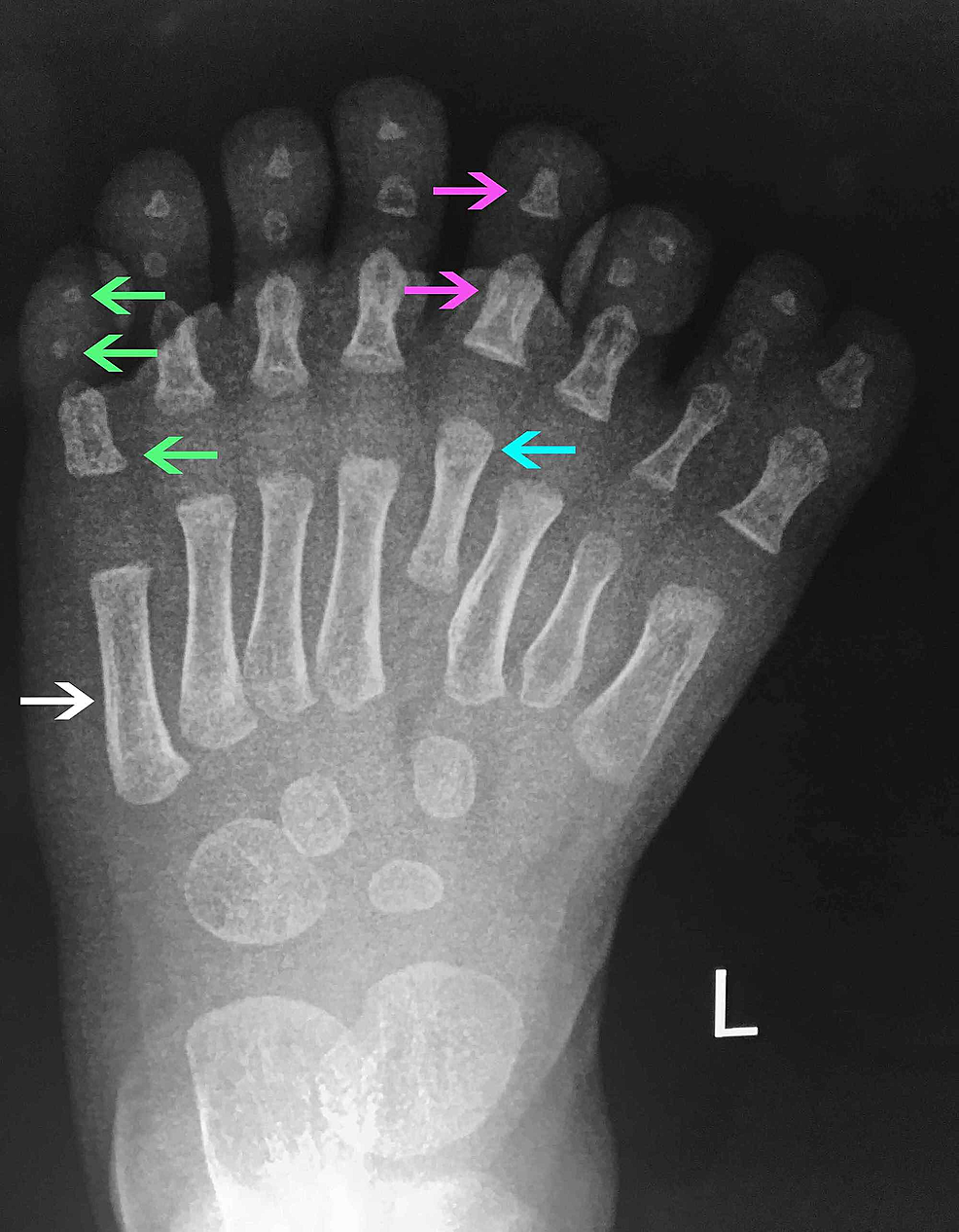 X-ray-(XR)-left-central-ray-mirror-foot