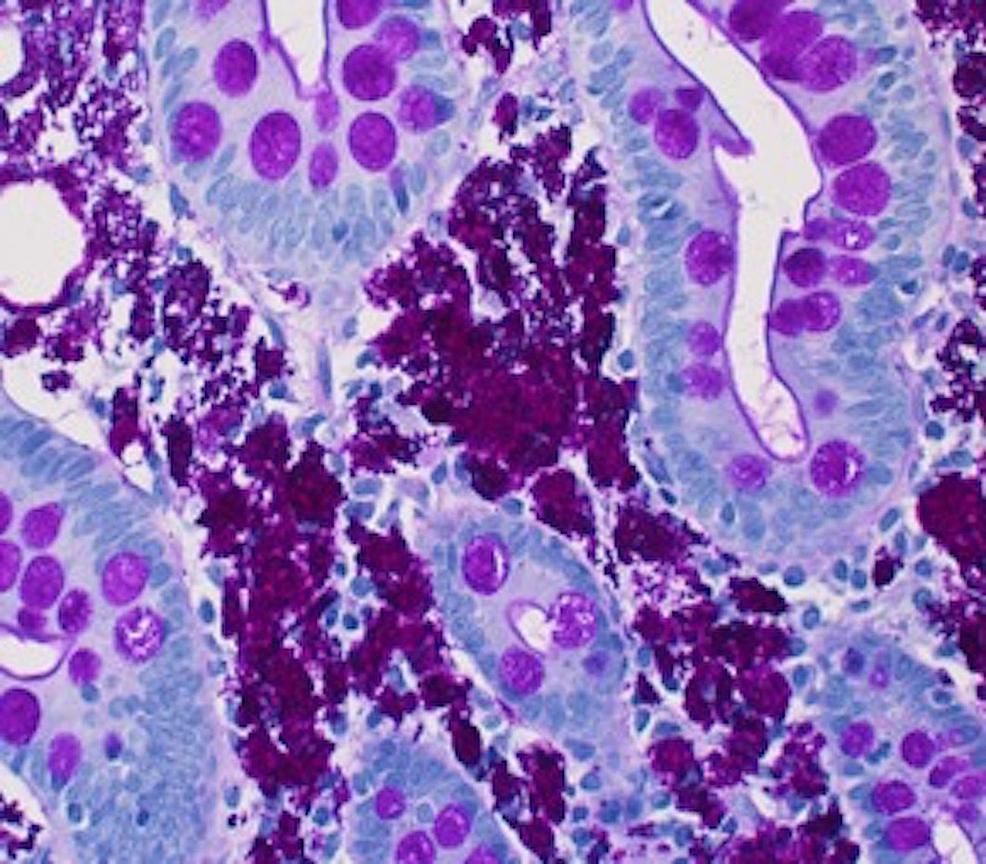 Small-Bowel-Biopsy