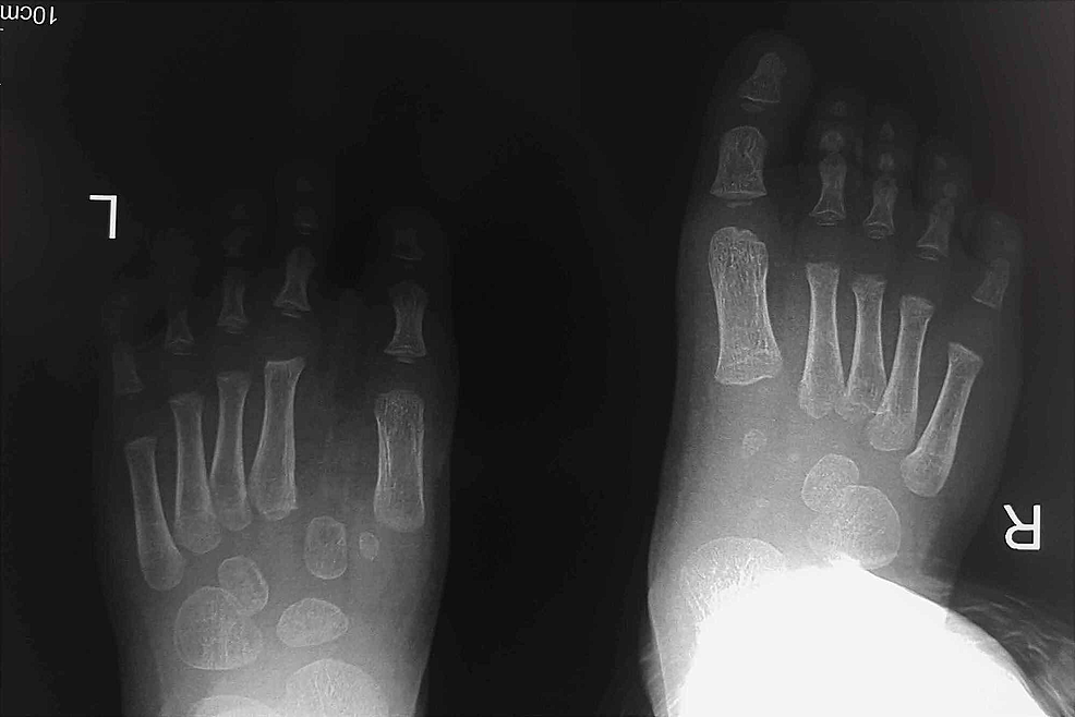 Two-year-follow-up-X-ray-(XR)