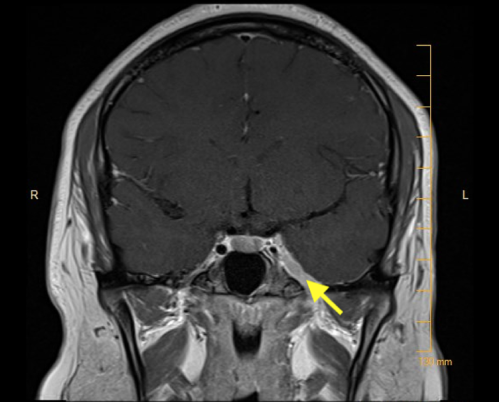 MRI-brain.-Another-image-indicating-the-enlarged-and-enhancing-left-cavernous-sinus.
