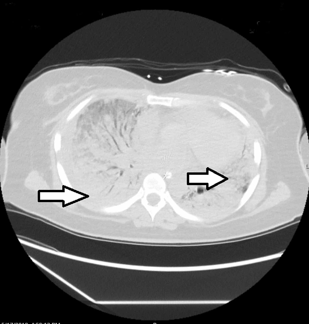 Computerized-tomography-of-the-chest-17-days-after-admission-showing-worsening-ground-glass-opacities-and-consolidative-changes-of-the-lungs-bilaterally-(arrows).