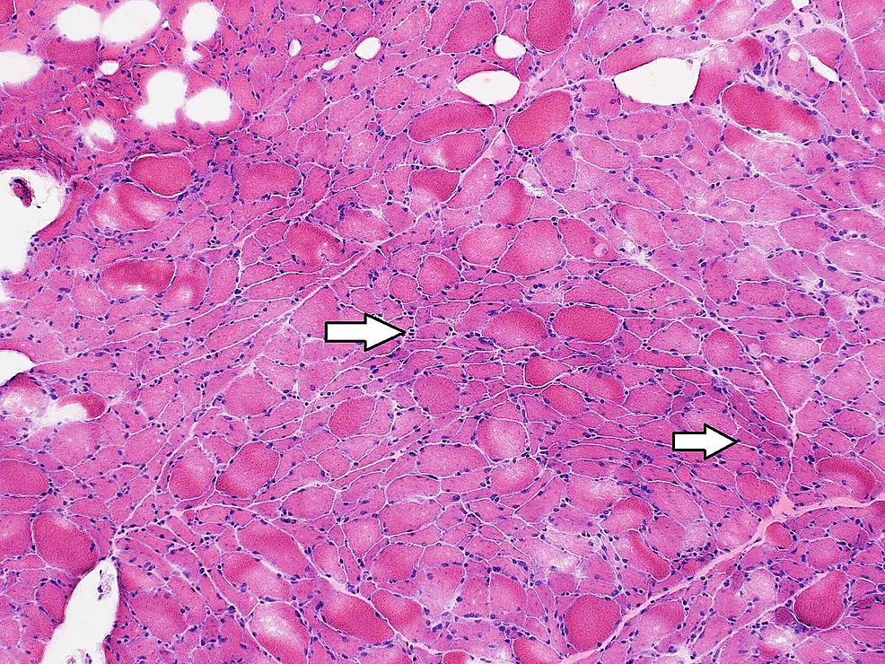 Hematoxylin-and-eosin-stain-of-the-left-thigh-muscle-biopsy-showing-several-angular-atrophic-fibers,-with-no-myopathic-features-and-no-evidence-of-inflammatory-cell-infiltrates-(original-magnification-100x)-(arrows).
