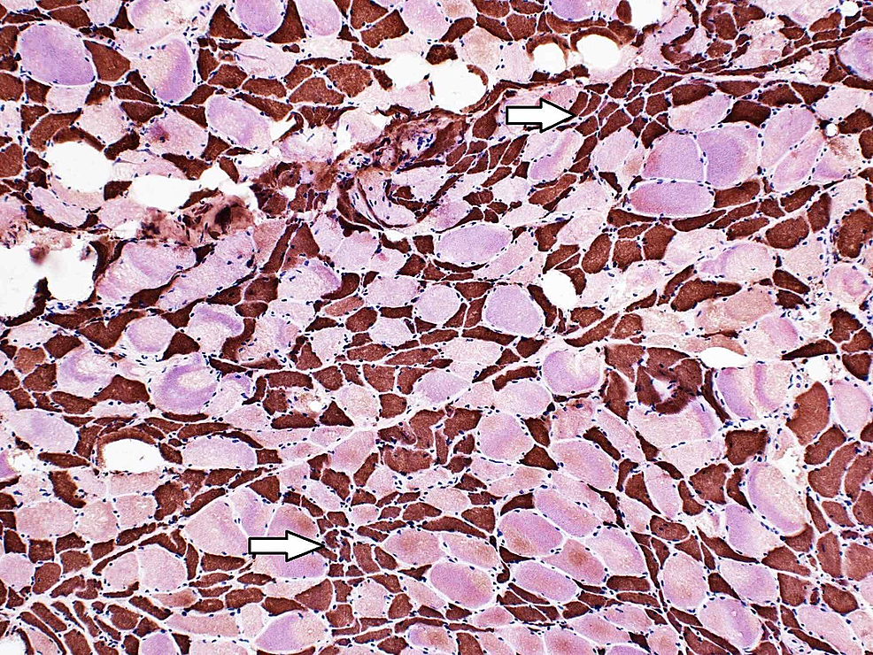 The-fast-myosin-heavy-chain-of-the-left-thigh-muscle-biopsy-staining-the-atrophic-muscle-fibers-brown-indicative-of-type-II-muscle-fibers-(type-I-fibers-stain-pink/red)-(original-magnification-100x)-(arrows).