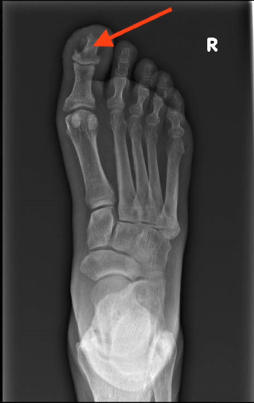X-ray-showing-erosion-of-distal-phalanx-of-the-right-big-toe
