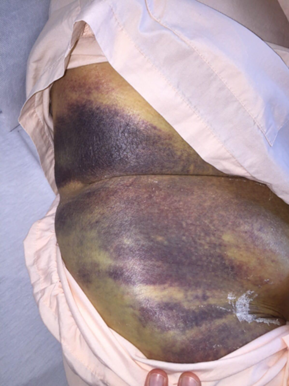Extensive-right-groin-ecchymosis-with-hematoma