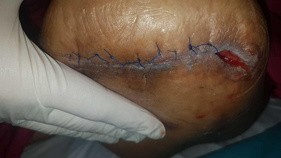 Demonstrating-skin-union-of-the-sutured-portion-at-one-week,-with-contraction-of-the-lateral-wound