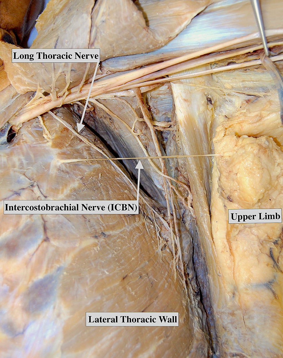 Cadaver-displaying-a-single-trunk-intercostobrachial-nerve