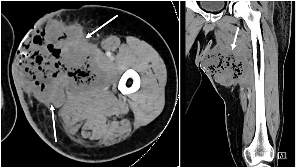 (Left-to-right:-axial-view,-coronal-view)-CT-scan-showing-8.6-x-8.4-x-11.4-cm-large,-medial-proximal-thigh-soft-tissue-mass-with-intralesional-gas-due-to-tissue-necrosis-(white-arrows)