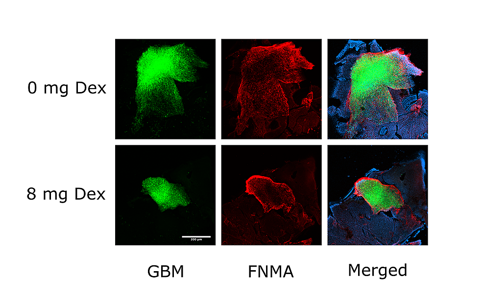 Dex-treatment-activates-FNMA-in-GBM-cells-and-alters-the-pattern-of-retina-dispersal