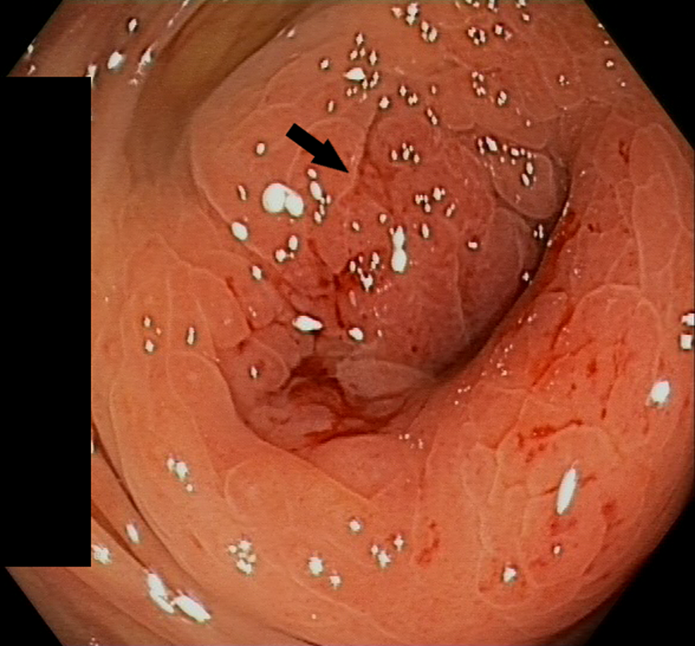 Endoscopic-image-of-the-stenosis-in-the-transverse-colon-with-metastatic-deposits-of-gastric-signet-ring-cell-adenocarcinoma-(arrow)