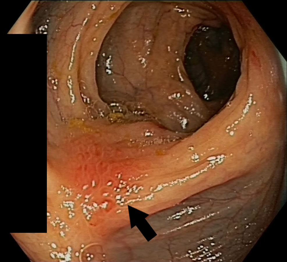 Metastatic-deposit-of-gastric-signet-ring-cell-adenocarcinoma-in-the-descending-colon-(arrow),-macroscopically-similar-to-the-stenosis-in-the-transverse-colon