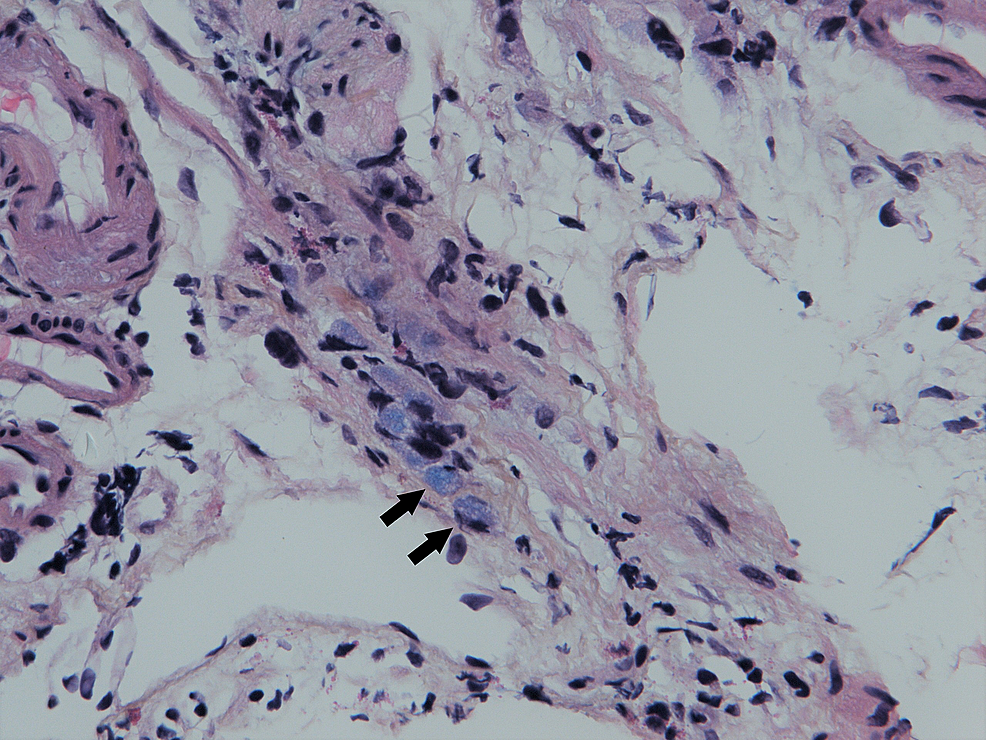 Microscopic-image-of-the-transverse-colon;-Kreyberg-stain,-40-x.-Signet-ring-cells-are-highlighted-with-arrows