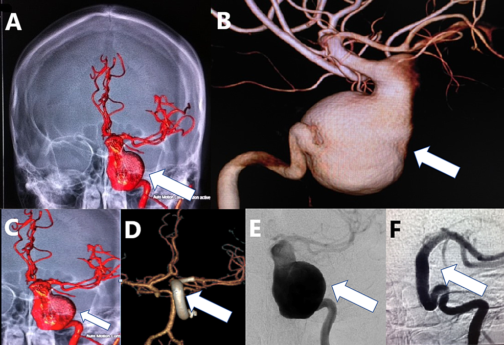 A-young-patient-with-an-unruptured-giant,-fusiform,-dissecting-left-ICA-aneurysm-treated-with-multiple-FDs.