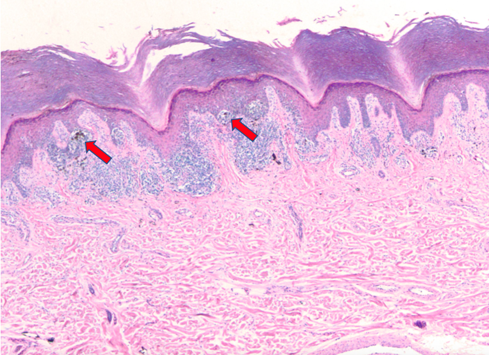 Extensive-proliferation-of-malignant-melanocytes-in-a-nested-array-(4x).