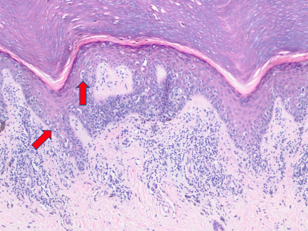 Extensive-proliferation-of-malignant-melanocytes-in-a-confluent-(left-arrow),-and-pagetoid-array-(right-arrow)-(10x).