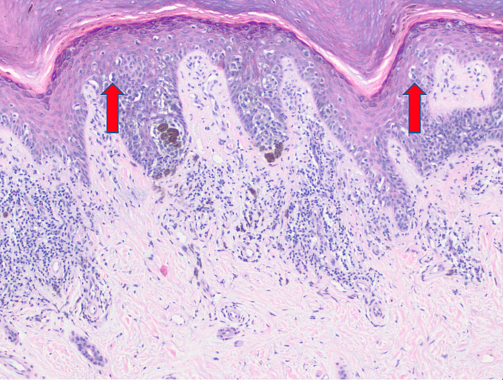 Extensive-proliferation-of-malignant-melanocytes-in-a-pagetoid-array-(10x).