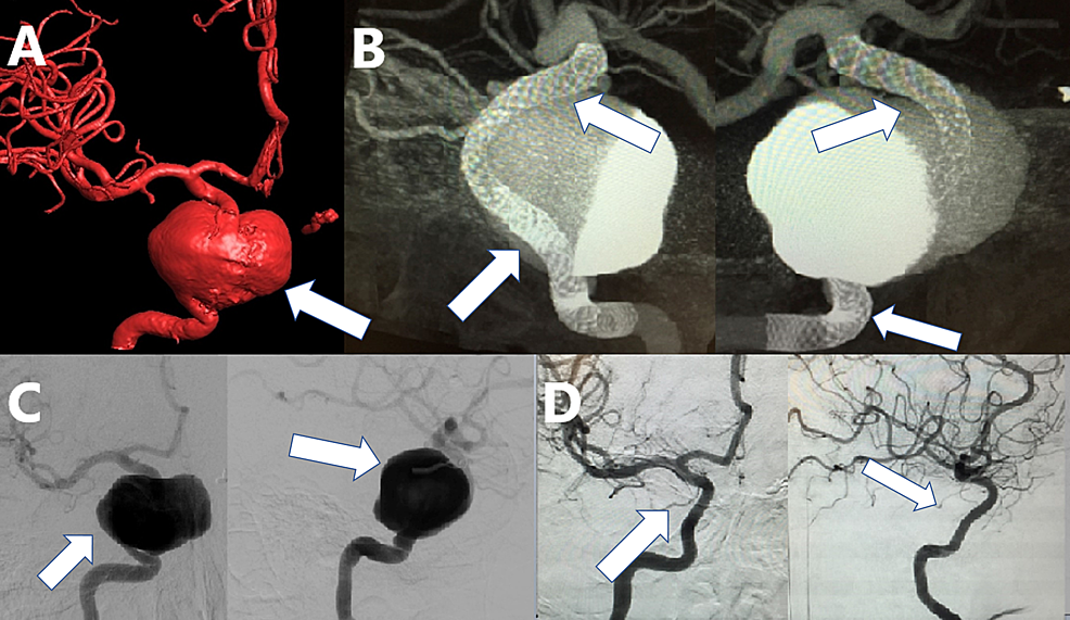 A-patient-with-an-unruptured-giant-cavernous-and-supraclinoid-aneurysm-of-the-right-ICA.-The-aneurysm-was-treated-by-implant-of-a-construct-of-FD-devices.