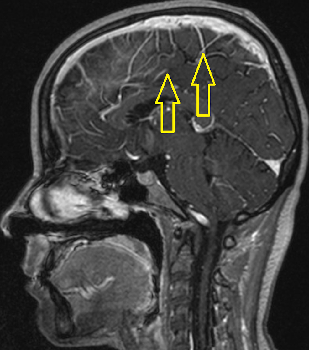 The-sagittal-post-contrast-T1-weighted-brain-MRI-image-demonstrates-leptomeningeal-enhancement-(yellow-arrows).