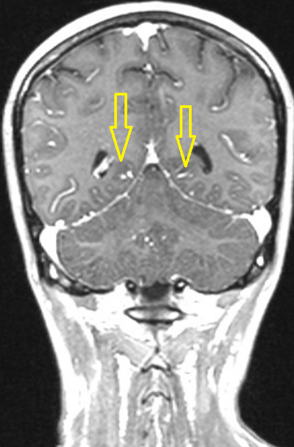 The-coronal-post-contrast-T1-weighted-brain-MRI-image-demonstrates-leptomeningeal-enhancement-(yellow-arrows).