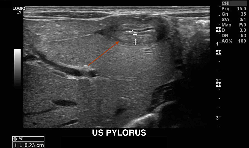 Ultrasound-of-the-pylorus